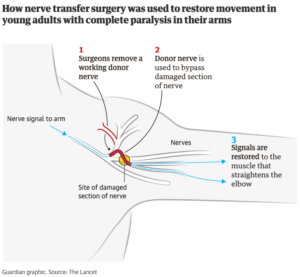 Nerve Transfer Methodology