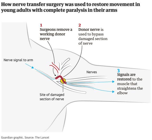 Nerve Transfer Methodology